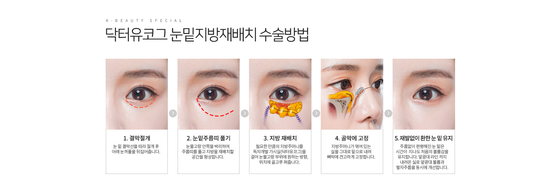 닥터유코그 눈밑지방재배치 특장점