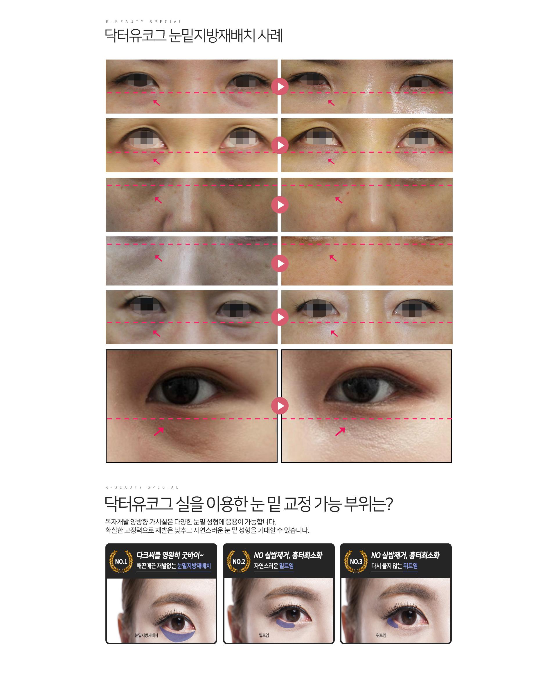 일반 눈밑지방재배치VS닥터유코그 눈밑지방재배치 수술결과 비교